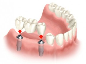 implantes imagen2 texto