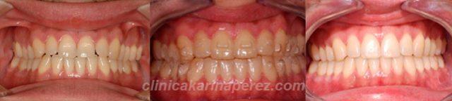 Antes y después perfil con tratamiento en 18 meses. Crecimiento maxilar inferior