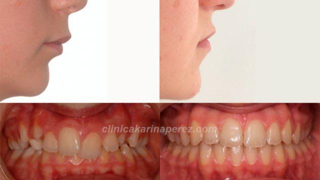 Antes y después perfil con tratamiento en 18 meses. crecimiento maxilar inferior.