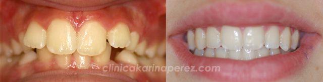 Antes y despues ortodoncia