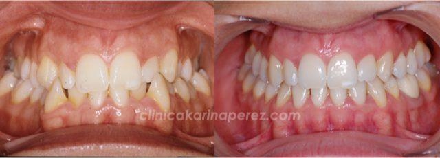 Caso de ortodoncia resuelto en 24 meses en adulto