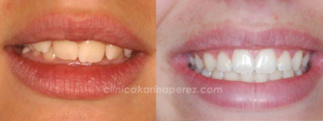 Ortodoncia antes y después, 1 año con aparato funcional y 12 meses con bracquets