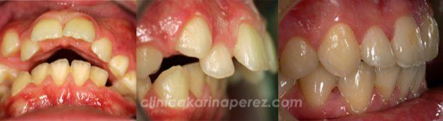 Ortodoncia antes y después, 1 año con aparato funcional y 12 meses con bracquets.
