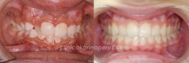 Ortodoncia antes y después de 16 meses de tratamiento