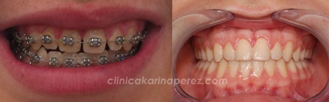 Tratamiento de ortodoncia de 12 meses de duración